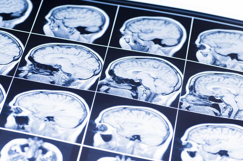 risks of traumatic brain injuries